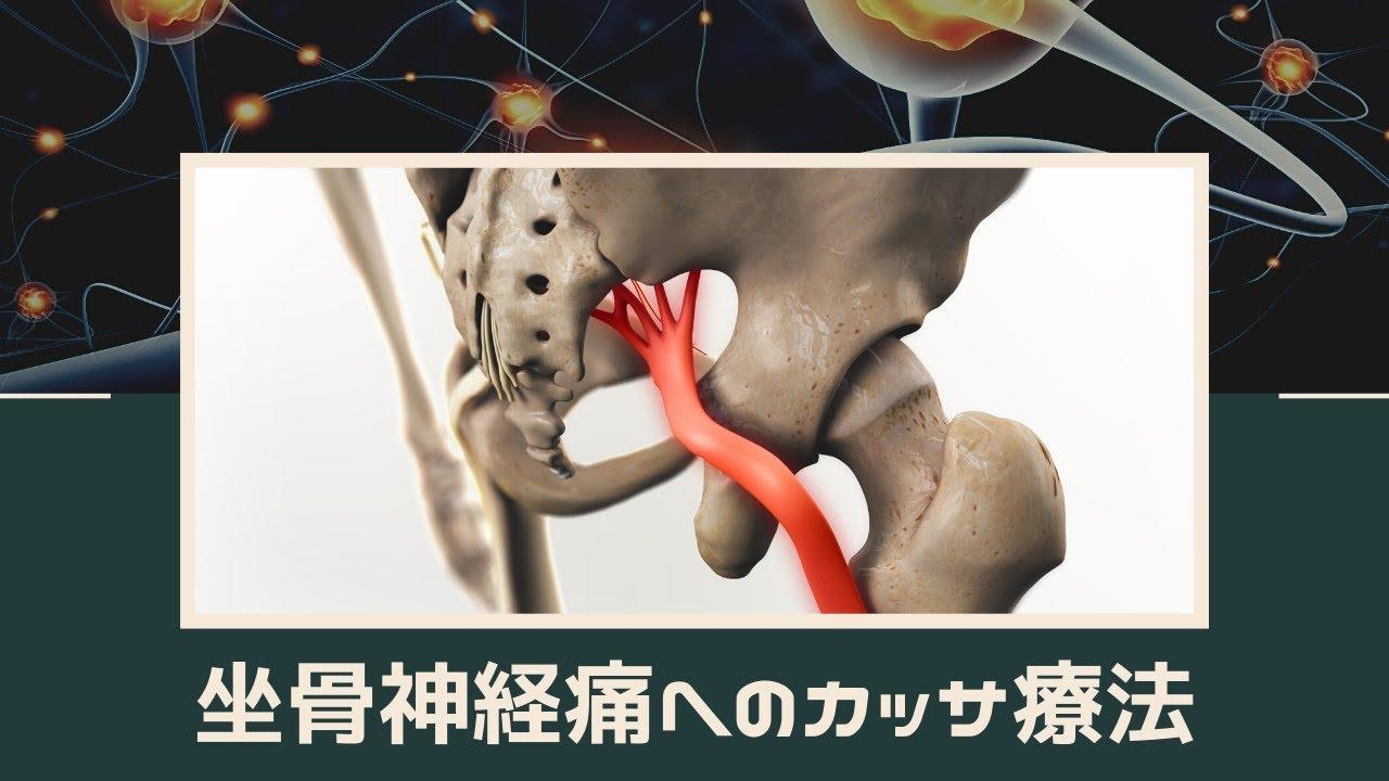 坐骨神経痛へのカッサ療法