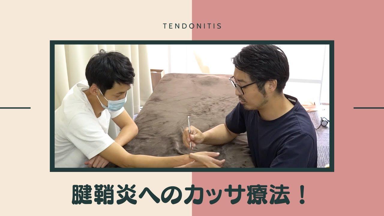 腱鞘炎へのカッサ療法!